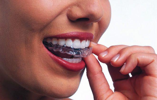 Imagine cupon oferta -  Stopeaza bruxismul!  Consultatie de specialitate + Plan de tratament + 2 Gutiere pentru bruxism +  Sfaturi igiena orala la doar 149 lei in loc de 250 lei, numai la Cabinet Andodent Expert! Protejeaza-ti dintii si stopeaza scrasnitul!