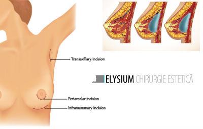 implant mamar pret
